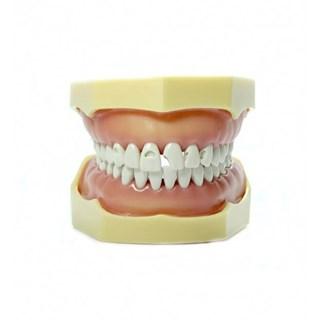 Manequim Materiais Dentários 2002 - MOM